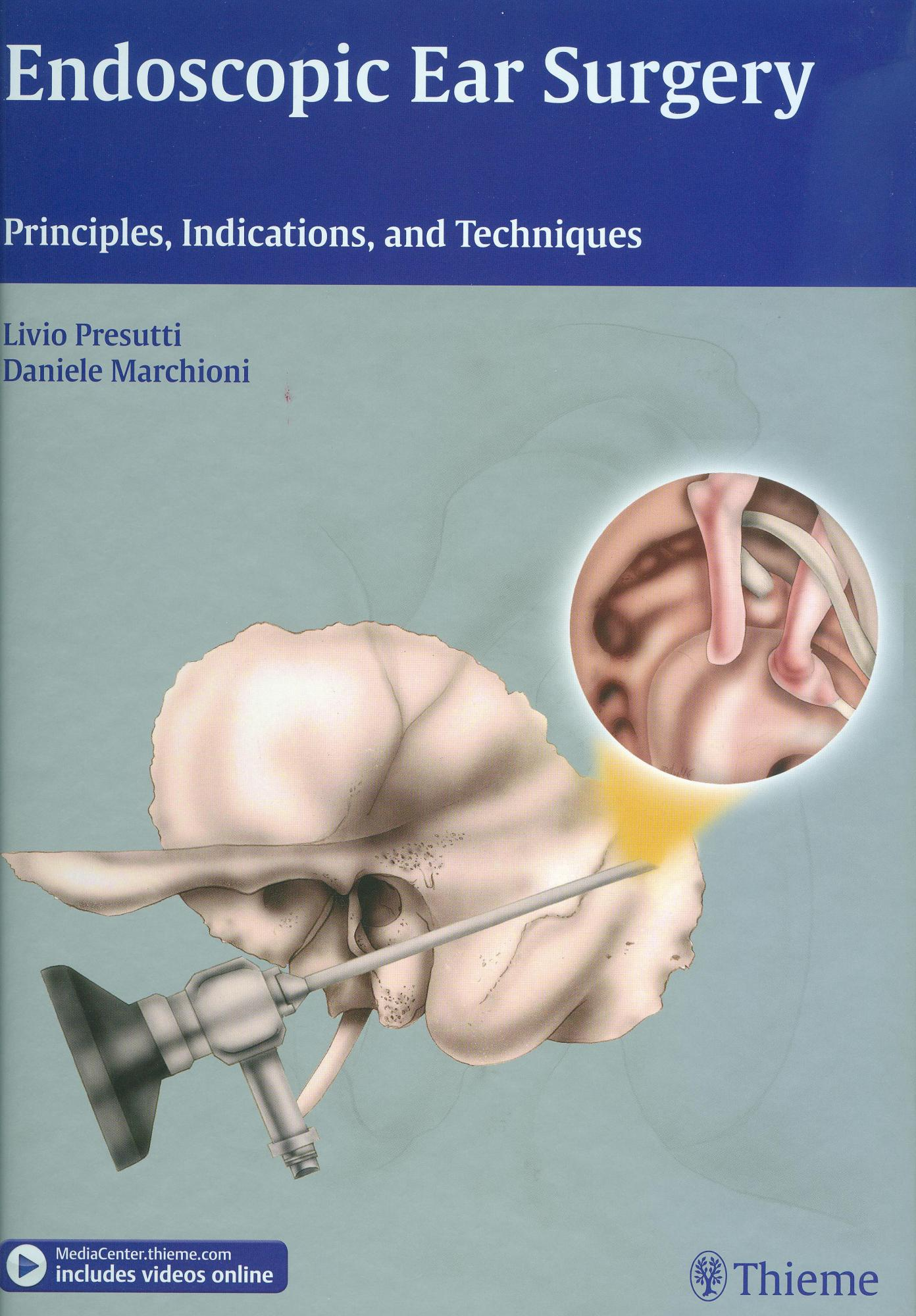 Endoscopic Ear Surgery: Principles, Indications and Techniques