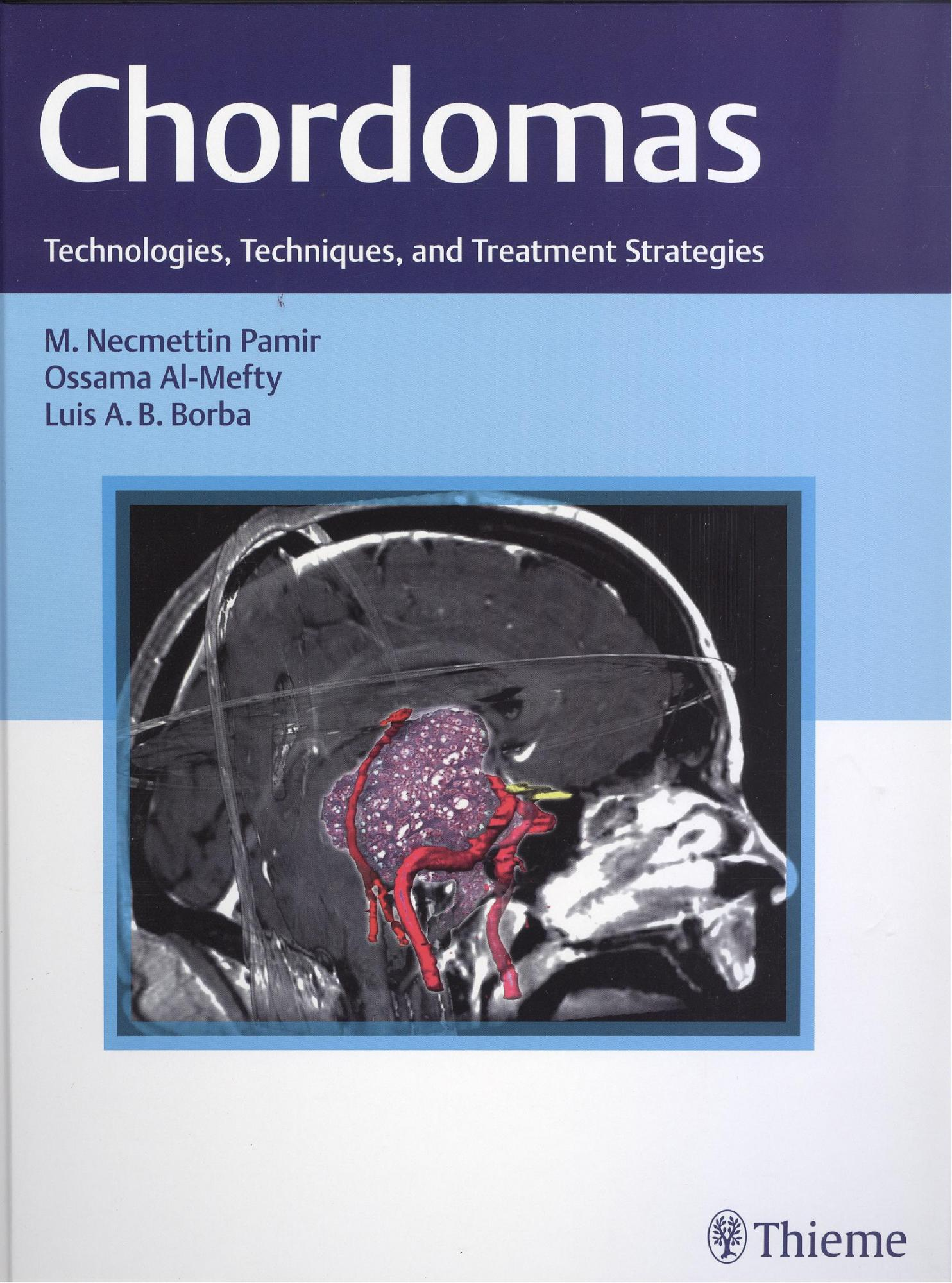 Chordomas: Technologies, Techniques, and Treatment Strategies