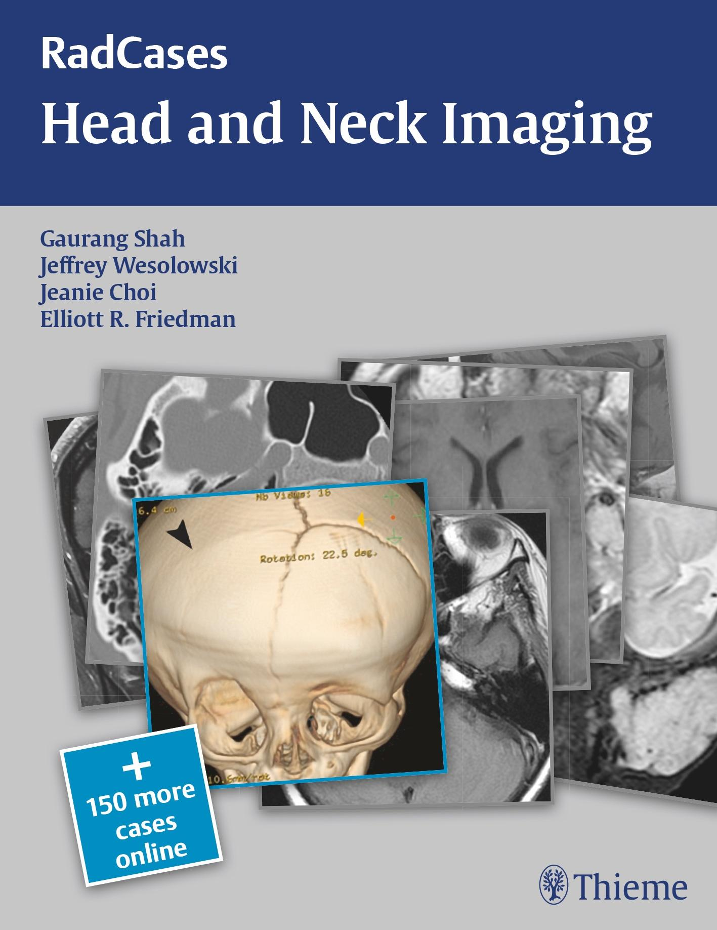 RadCases: Head and Neck Imaging