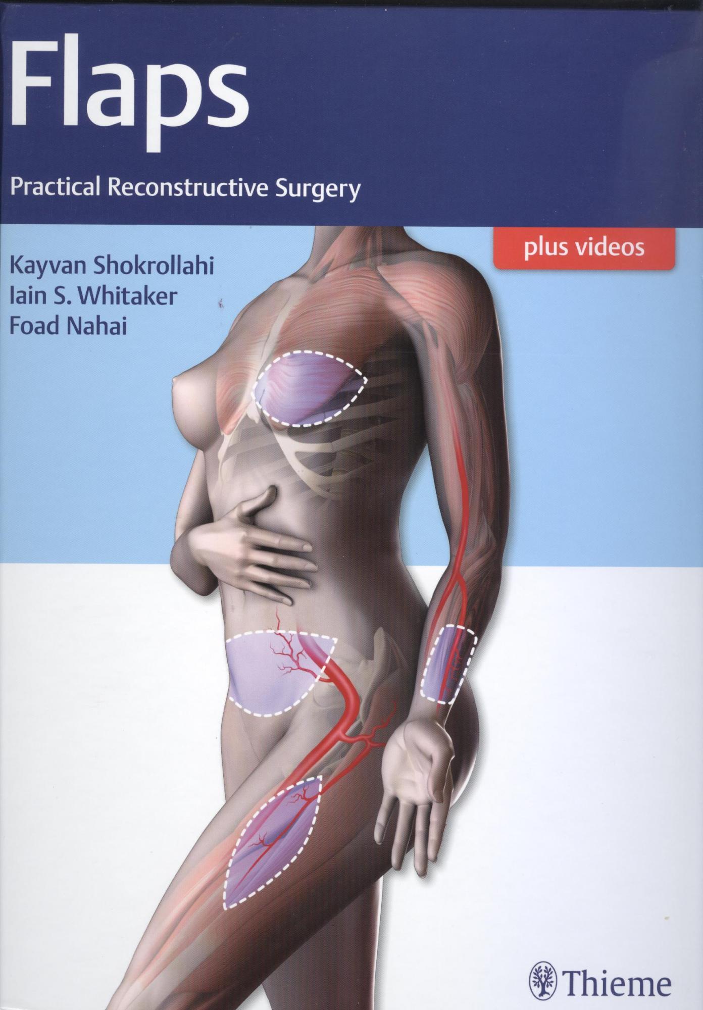 Flaps: Practical Reconstructive Surgery