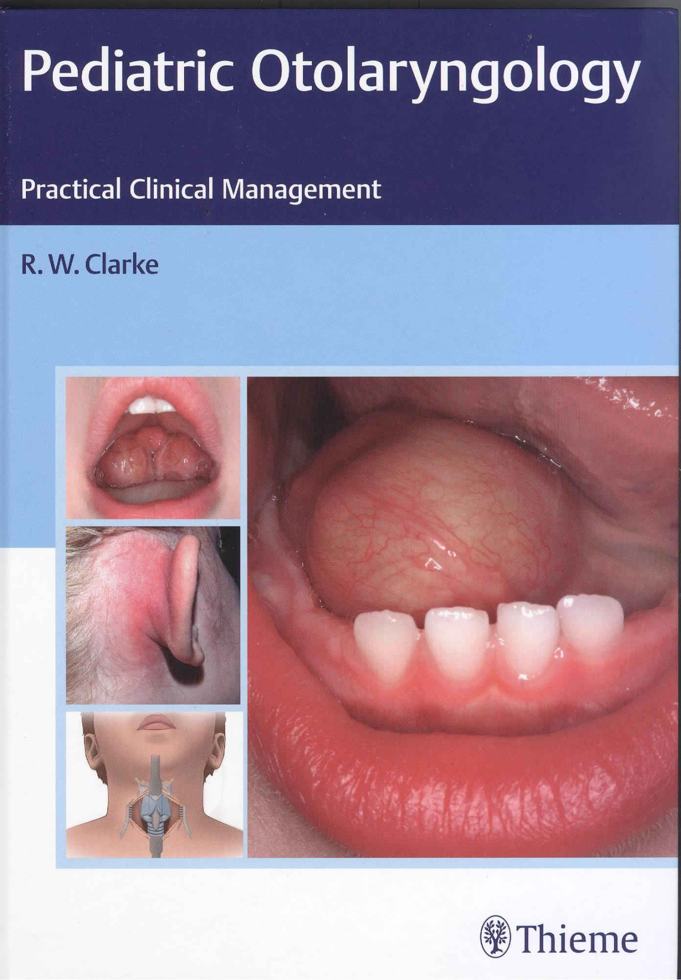 Paediatric Otolaryngology: Practical Clinical Management