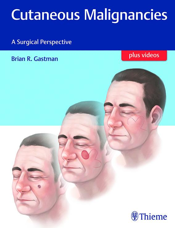 Cutaneous Malignancies: A Surgical Perspective
