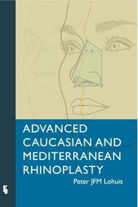 Advanced Caucasian and Mediterranean Rhinoplasty