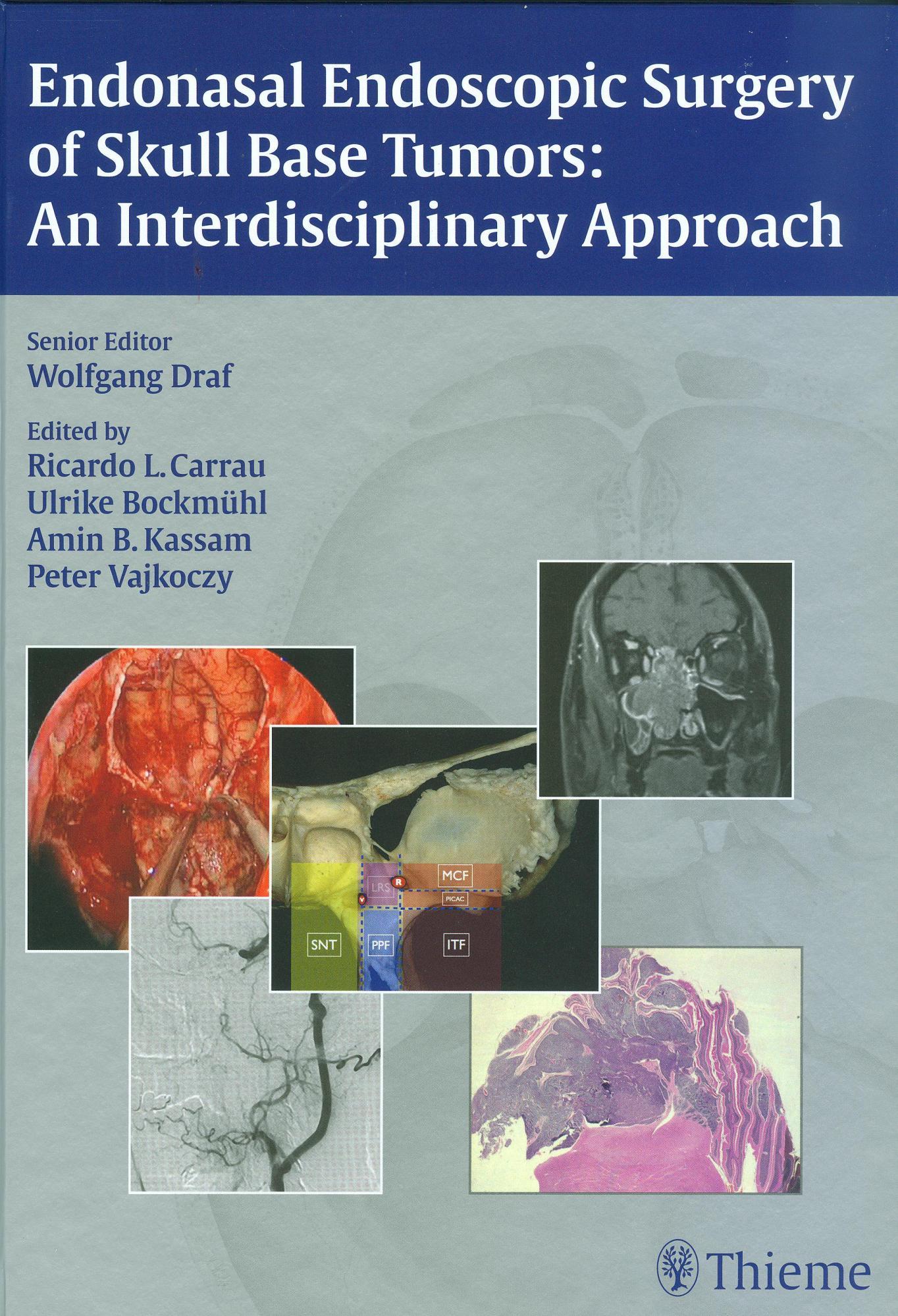 Enodonasal Endoscopic Surgery of Skull Base Tumours: an Interdisciplinary Approach