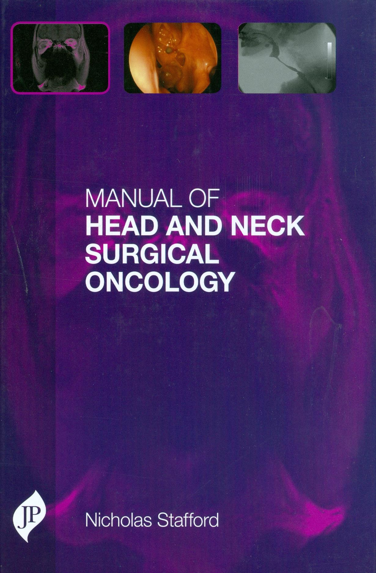 Manual of Head and Neck Surgical Oncology