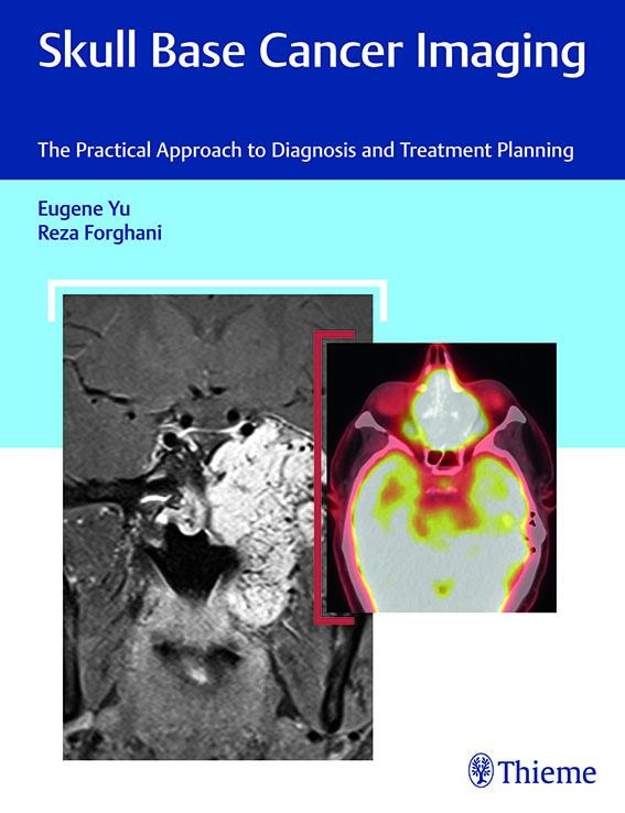 Skull base cancer imaging: the practical approach to diagnosis and treatment planning