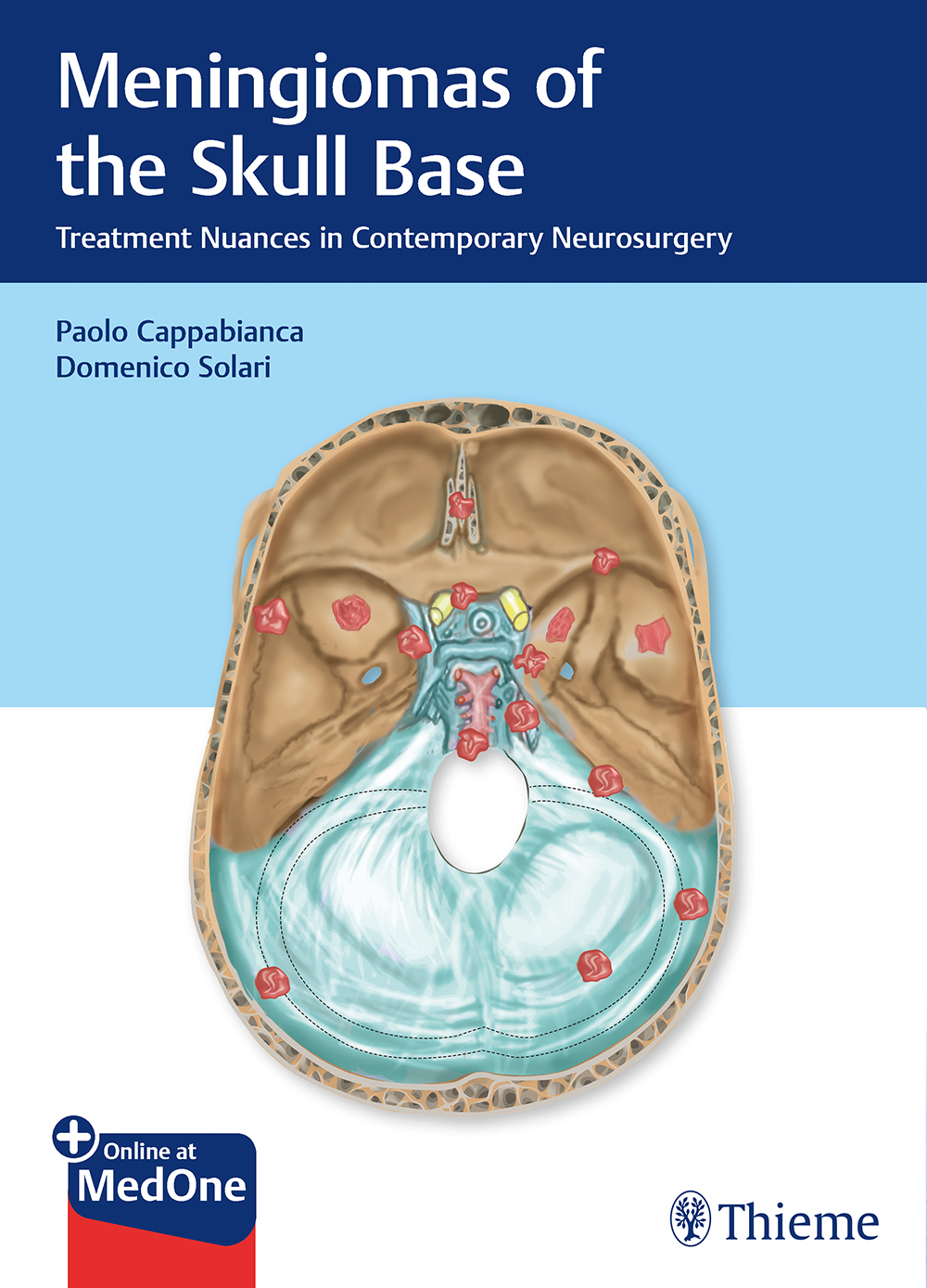 Meningiomas of the Skull Base: Treatment Nuances in Contemporary Neurosurgery