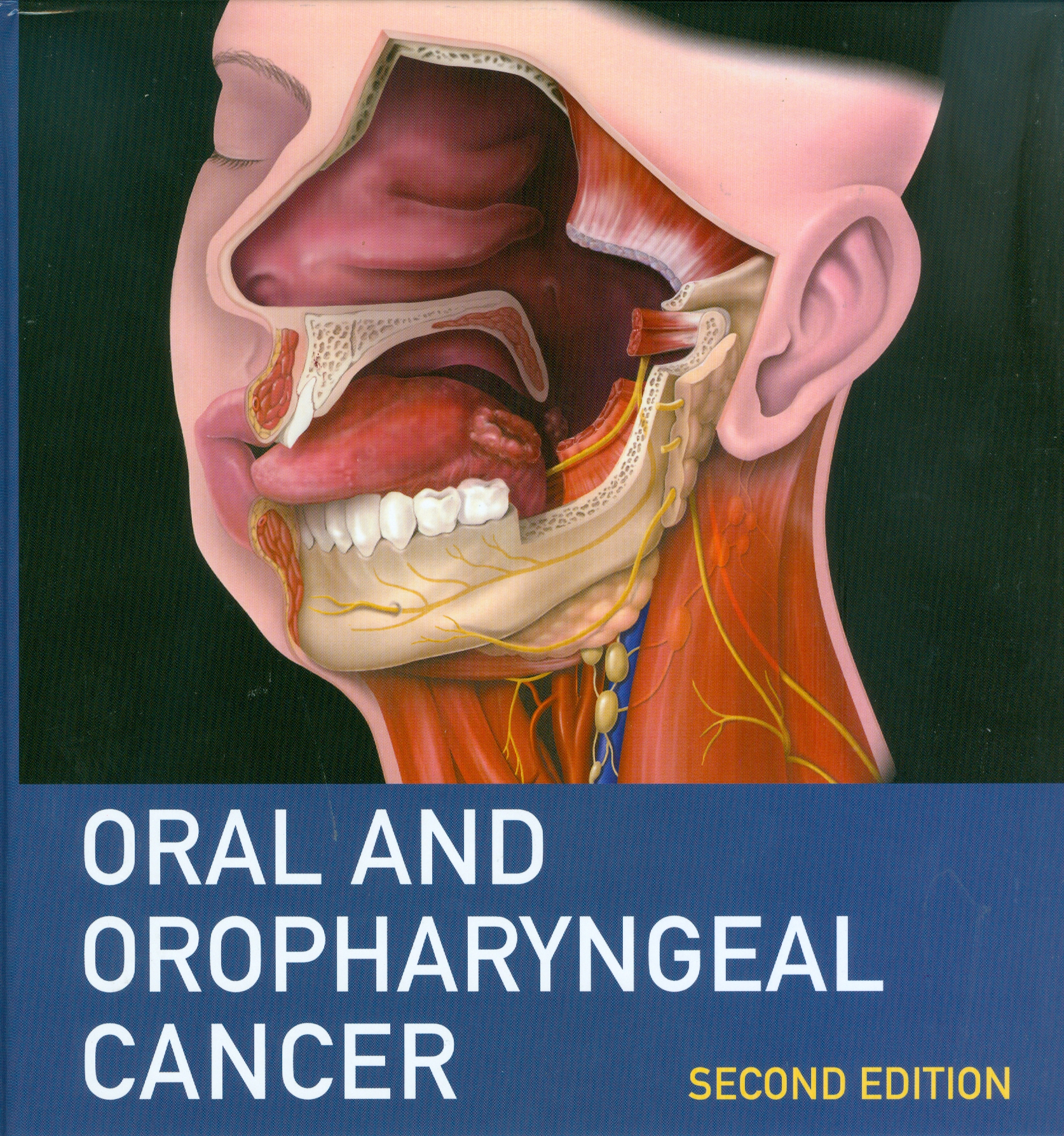 Oral and Oropharyngeal Cancer, 2nd edn