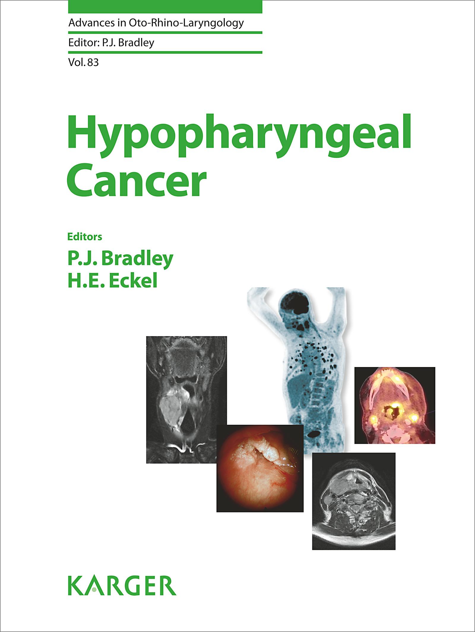 Advances in Oto-Rhino-Laryngology, Vol. 83: Hypopharyngeal Cancer