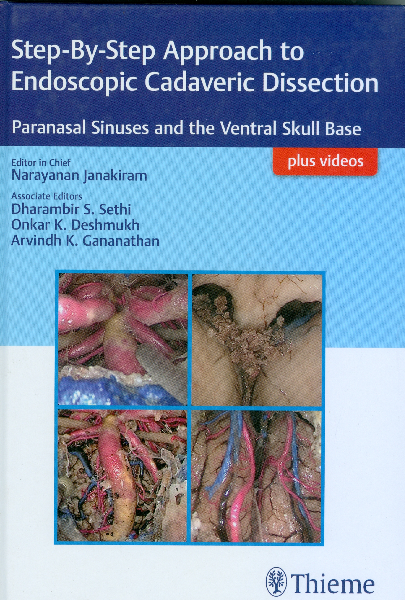 Step-By-Step Approach to Endoscopic Cadaveric Dissection: Paranasal Sinuses and the Ventral Skull Base