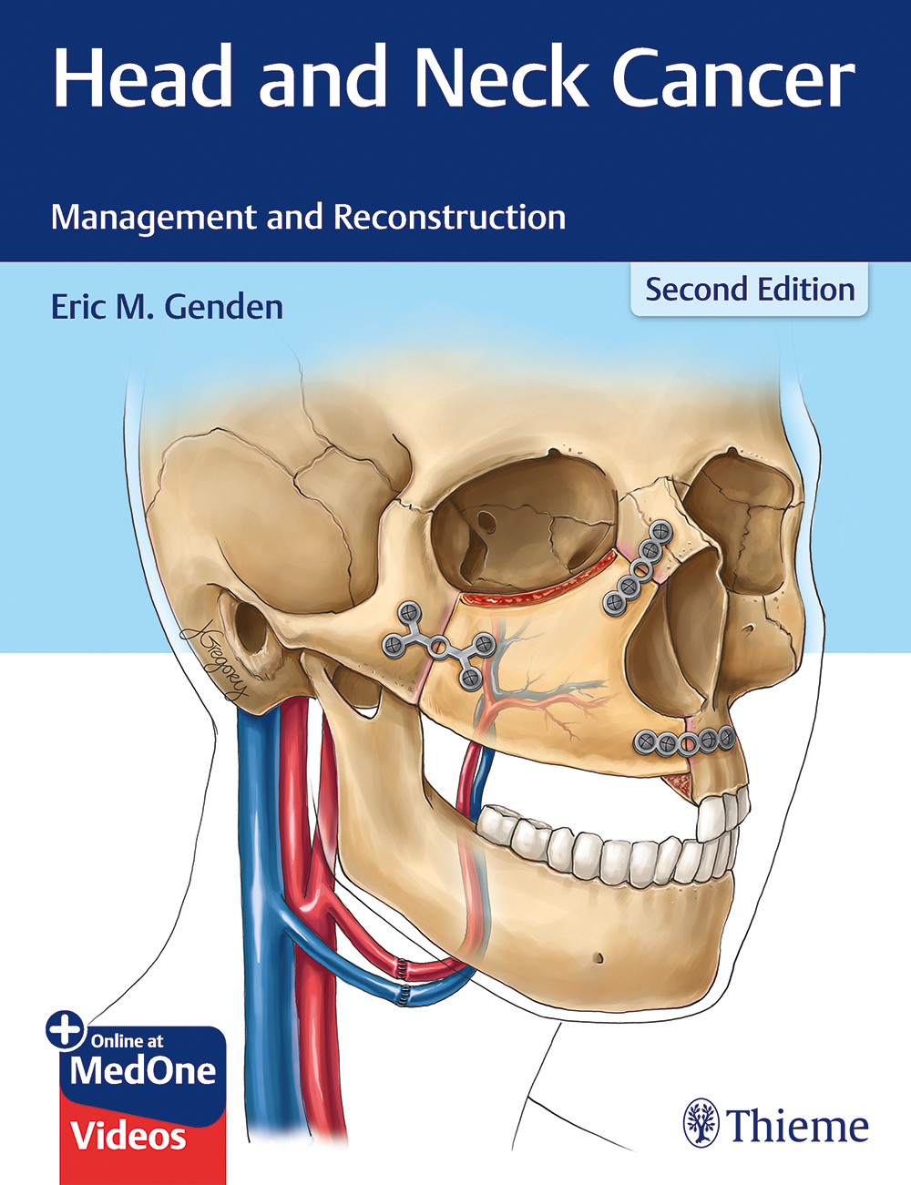 Head and Neck Cancer: Management and Reconstruction, 2nd edn