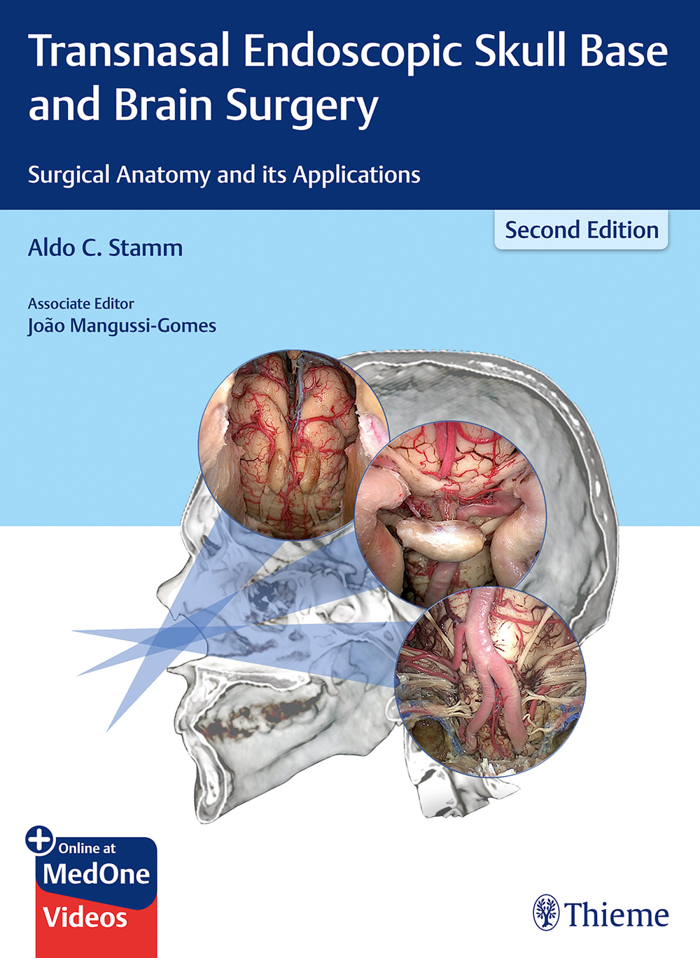 Transnasal Endoscopic Skull Base and Brain Surgery: Surgical Anatomy and its Applications, 2nd edn