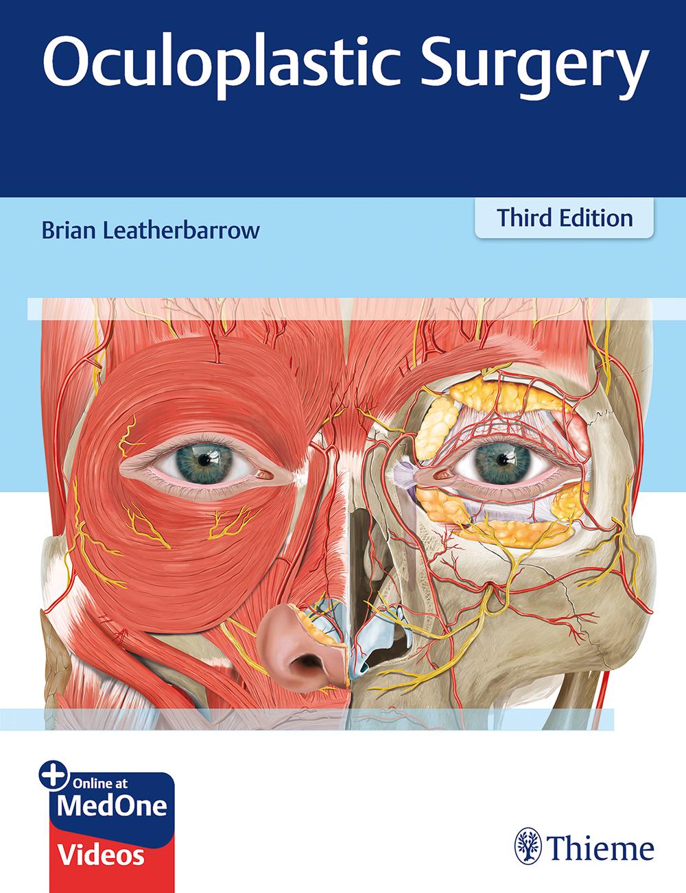Oculoplastic Surgery, 3rd edn