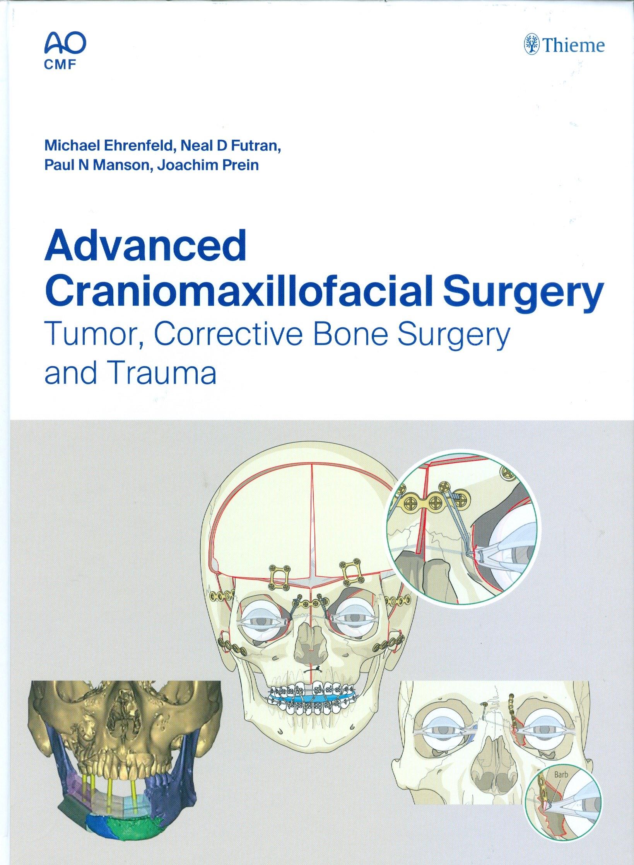 Advanced Craniomaxillofacial Surgery: Tumor, Corrective Bone Surgery and Trauma