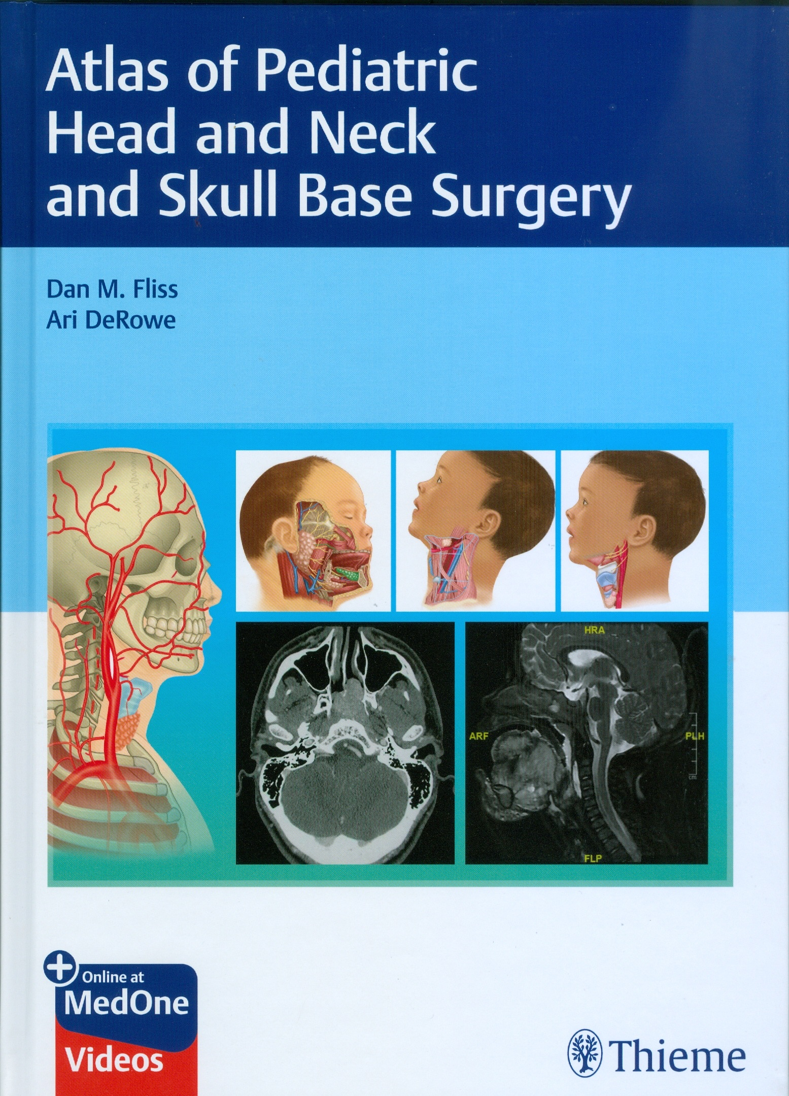 Atlas of Pediatric Head and Neck and Skull Base Surgery
